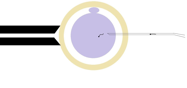 icsi ivf   male infertility   male fertility   ivf process